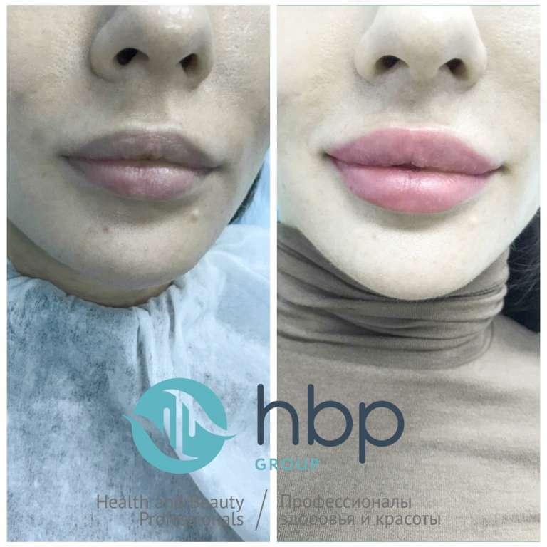 Преображение с инновационными филлерами Platinum HBP-Group